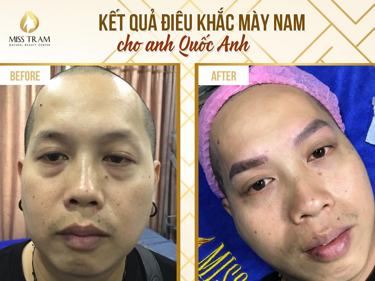Dieu khac phay soi cho nam