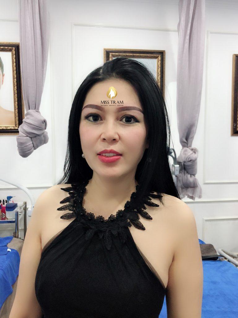 co nen phun chan may lam dep o tham my miss tram hay khong
